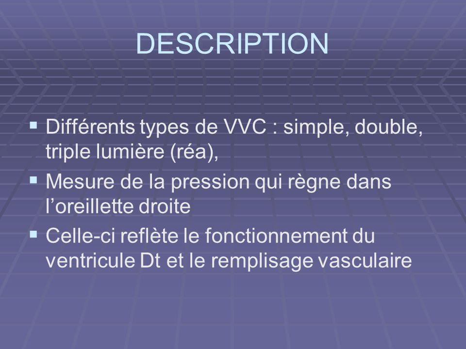 DESCRIPTION Différents types de VVC : simple, double, triple lumière (réa), Mesure de la pression qui règne dans l'oreillette droite.