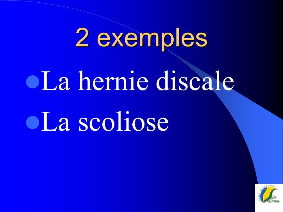 2 exemples La hernie discale La scoliose