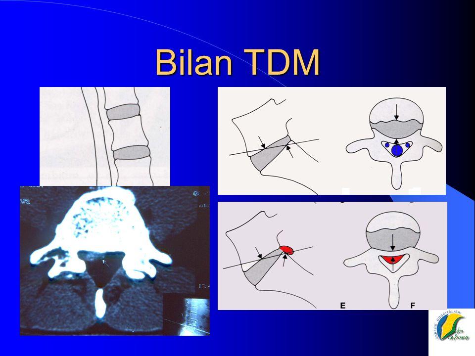 Bilan TDM