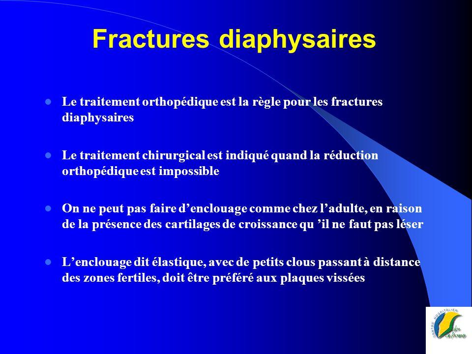 Fractures diaphysaires