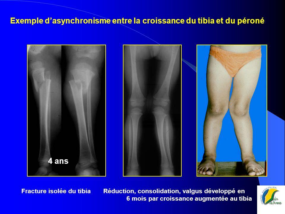 Exemple d'asynchronisme entre la croissance du tibia et du péroné