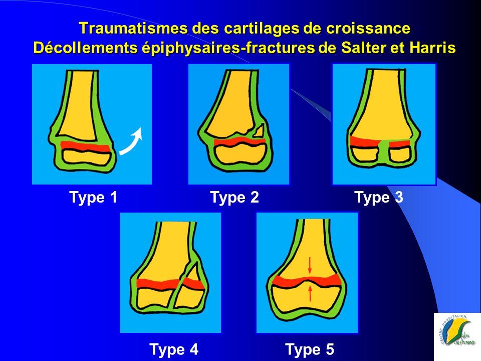 Traumatismes des cartilages de croissance Décollements épiphysaires-fractures de Salter et Harris