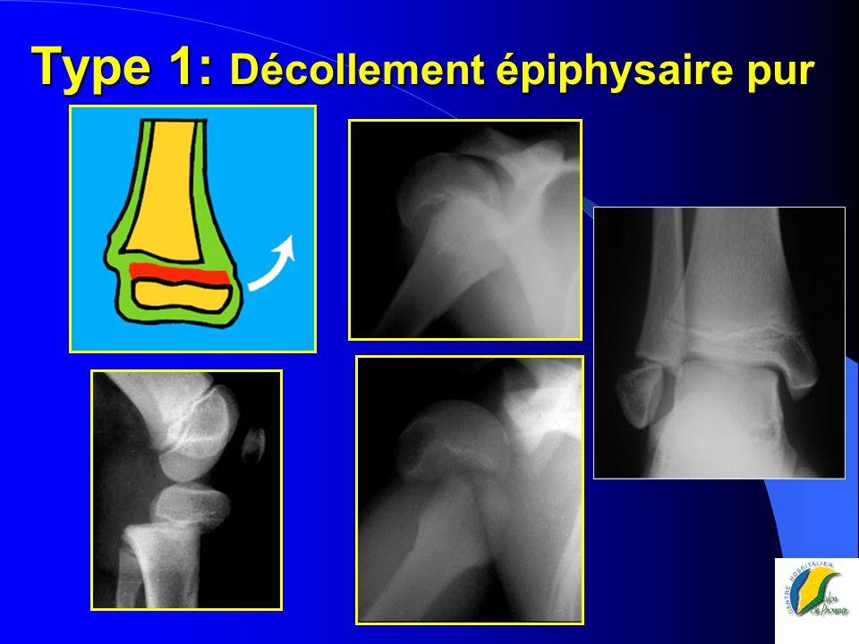 Type 1: Décollement épiphysaire pur