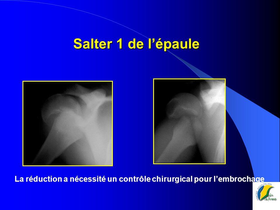 Salter 1 de l'épaule La réduction a nécessité un contrôle chirurgical pour l'embrochage