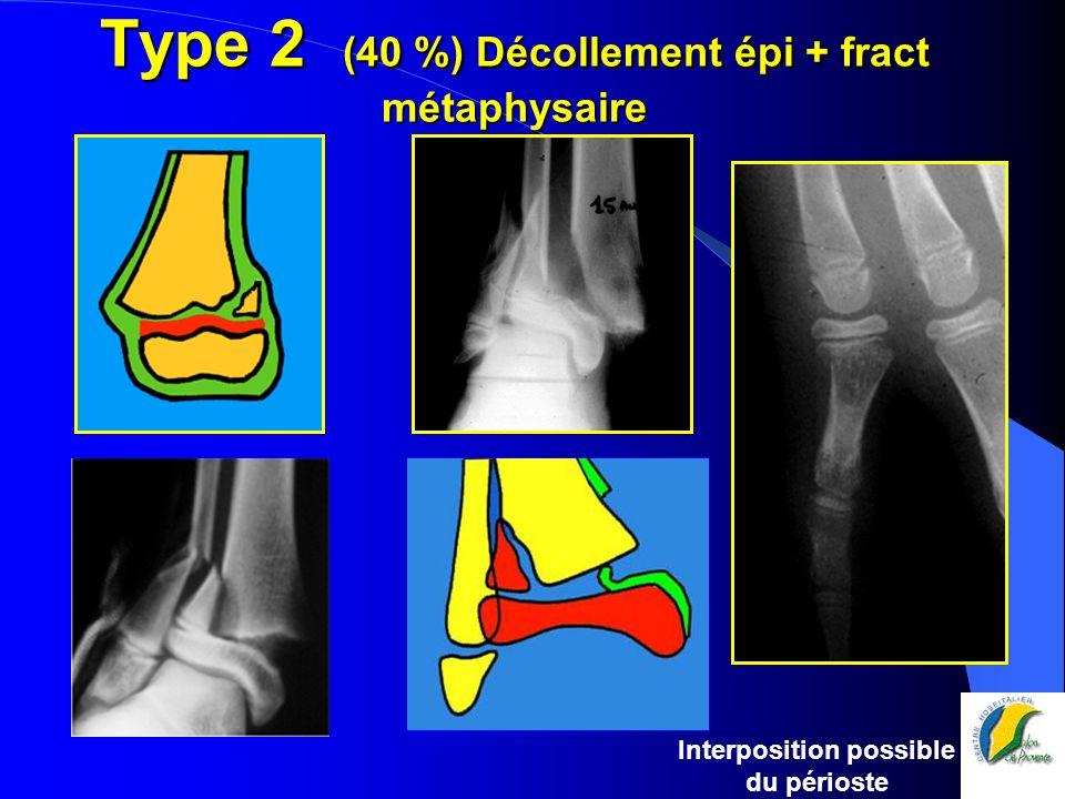 Type 2 (40 %) Décollement épi + fract métaphysaire