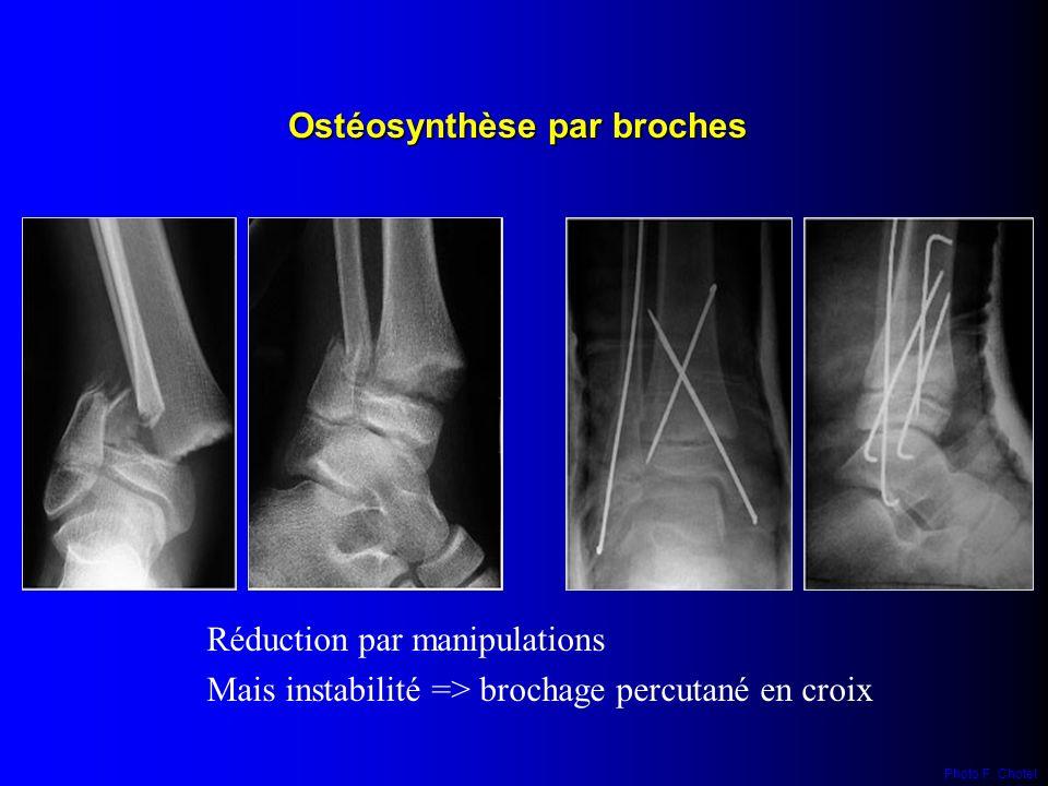 Ostéosynthèse par broches