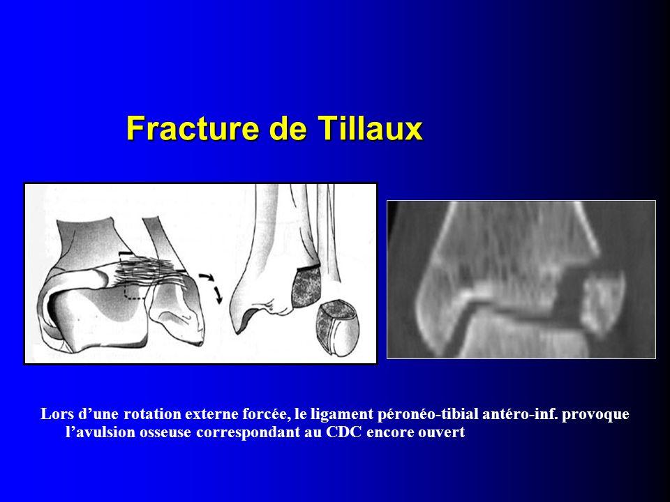 Fracture de Tillaux