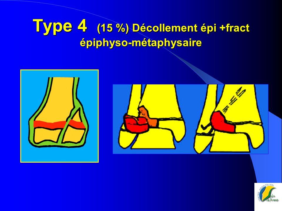 Type 4 (15 %) Décollement épi +fract épiphyso-métaphysaire