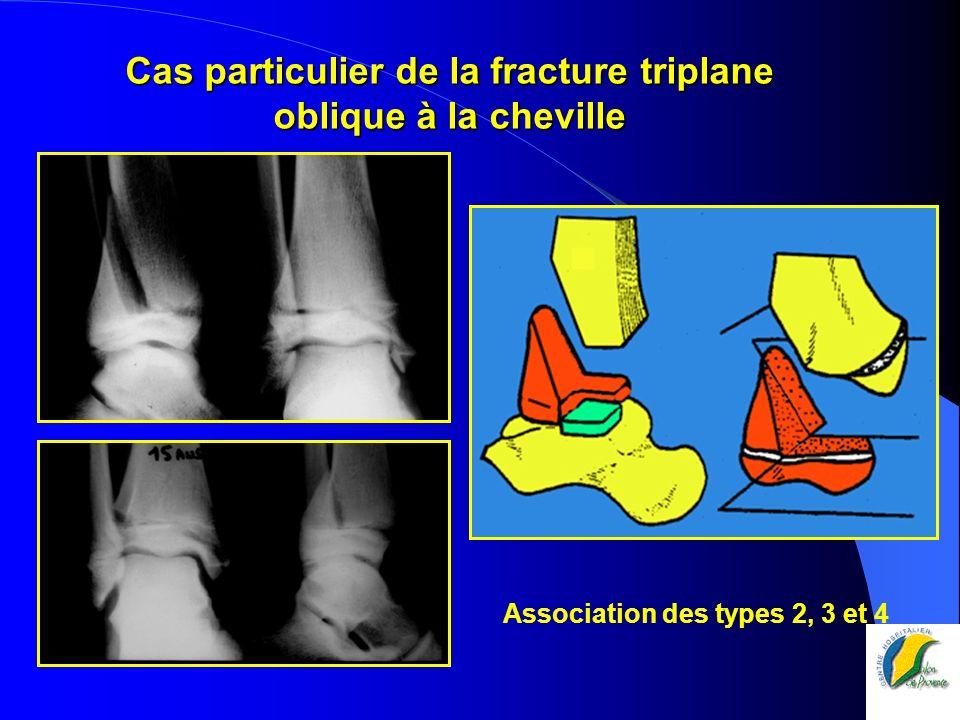 Cas particulier de la fracture triplane oblique à la cheville