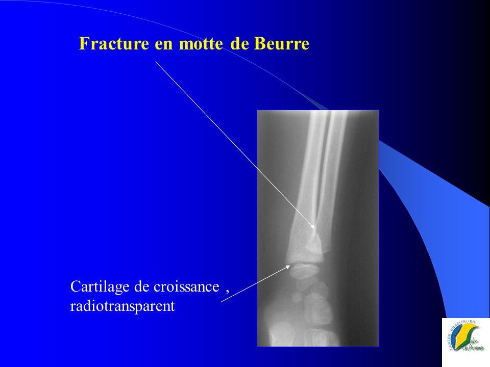 Fracture en motte de Beurre