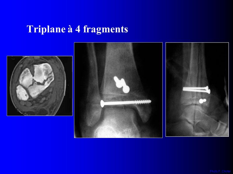 Triplane à 4 fragments Photo F. Chotel