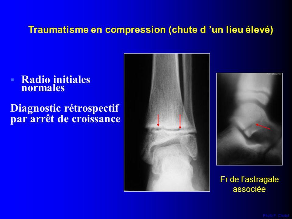 Traumatisme en compression (chute d 'un lieu élevé)