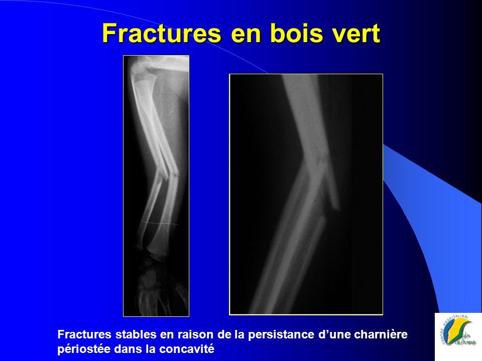 Fractures en bois vert Fractures stables en raison de la persistance d'une charnière périostée dans la concavité.