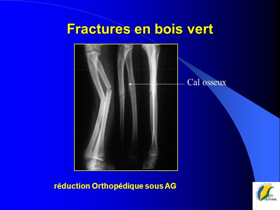 Sce d'Orthopédie et Traumatologie  ppt télécharger ~ Fracture Bois Vert Poignet