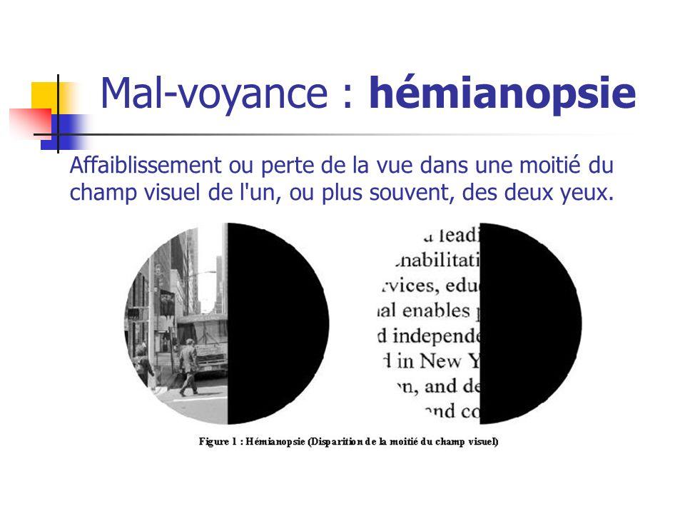 Mal-voyance : hémianopsie