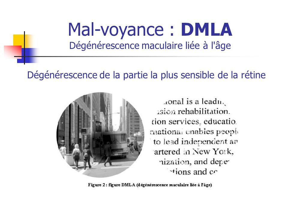 Mal-voyance : DMLA Dégénérescence maculaire liée à l âge