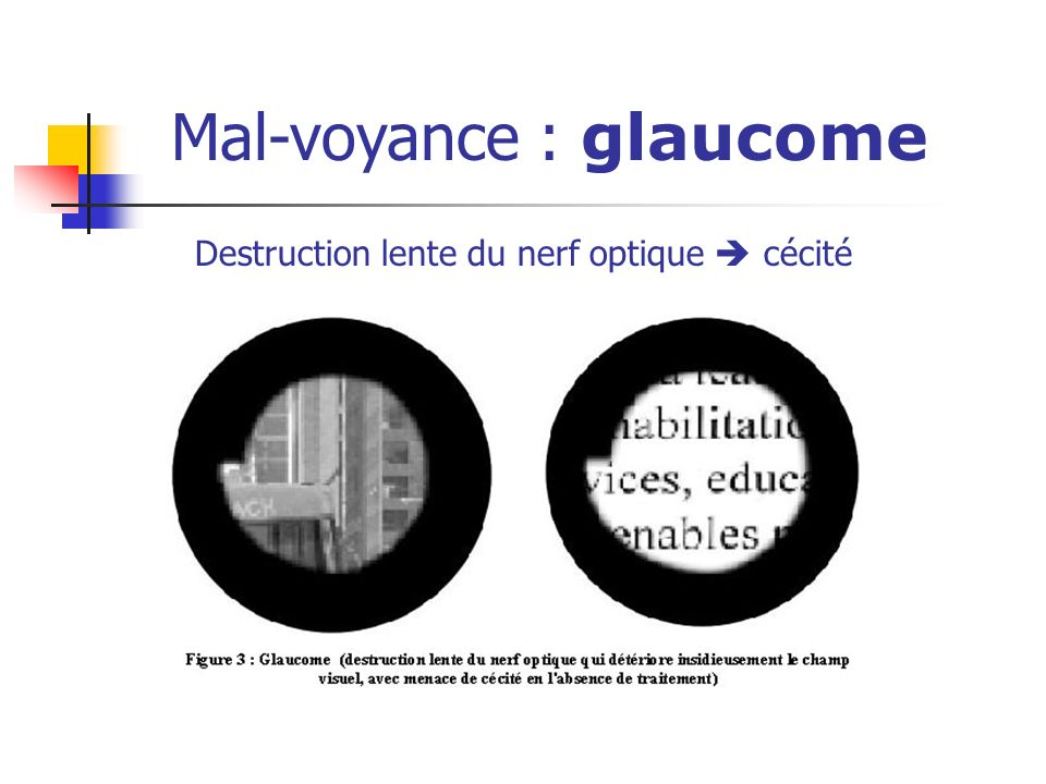Mal-voyance : glaucome