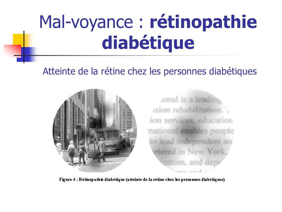 Mal-voyance : rétinopathie diabétique