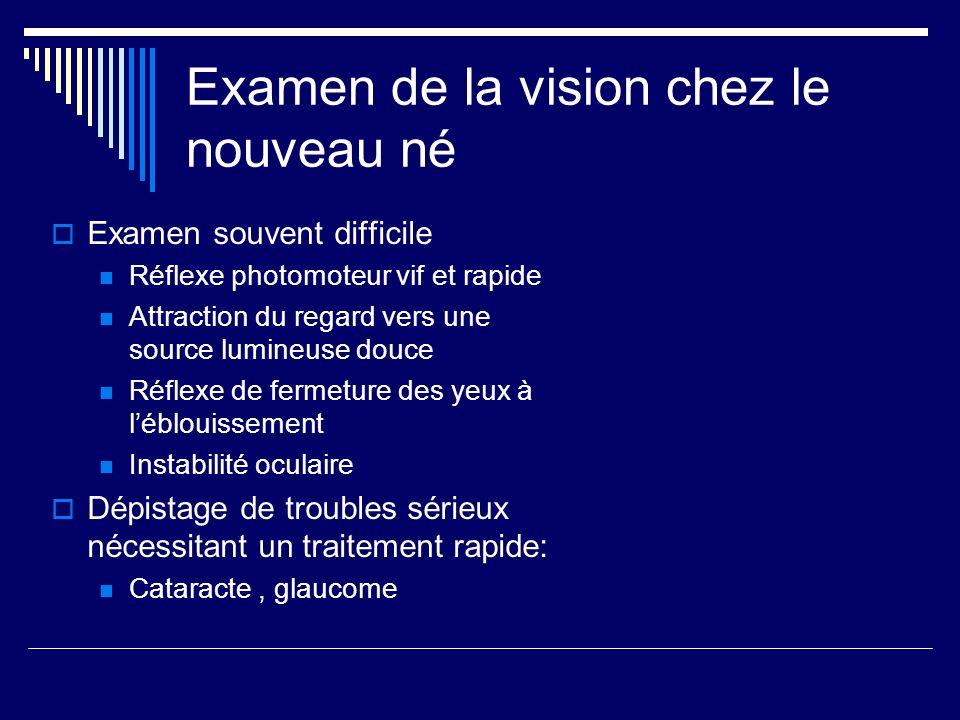 Examen de la vision chez le nouveau né