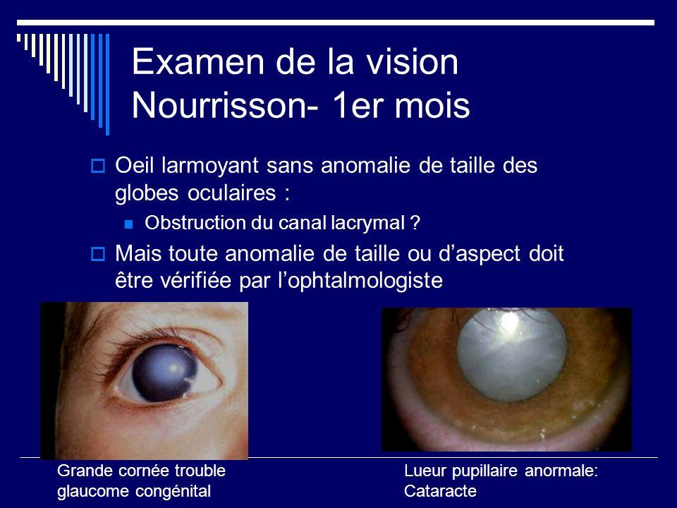 Examen de la vision Nourrisson- 1er mois