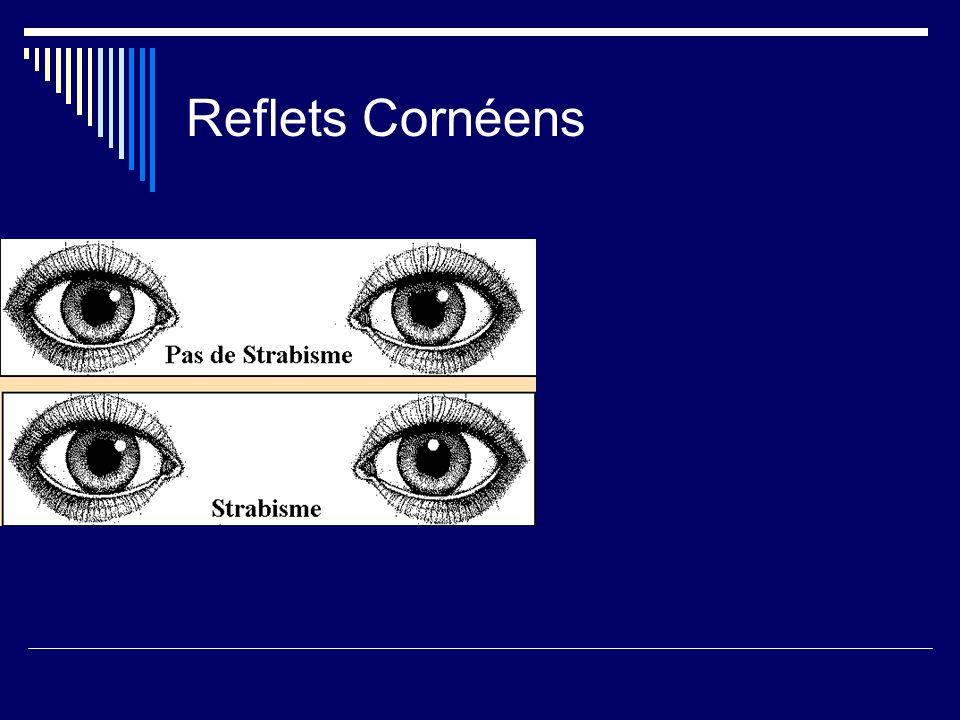 Reflets Cornéens