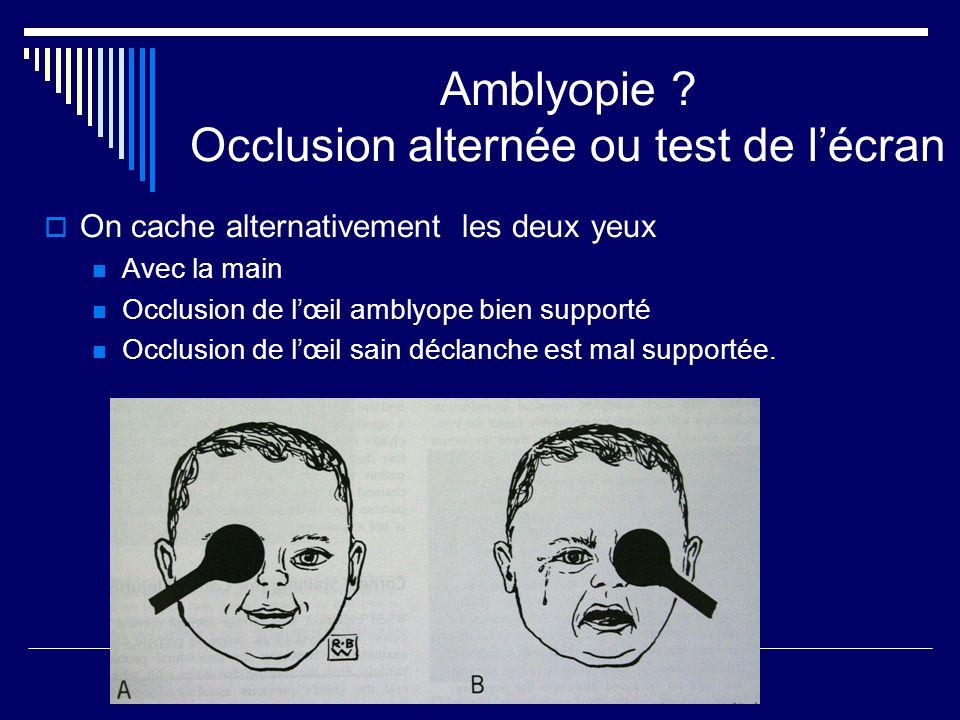 Amblyopie Occlusion alternée ou test de l'écran