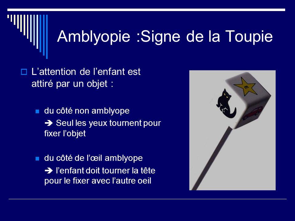 Amblyopie :Signe de la Toupie