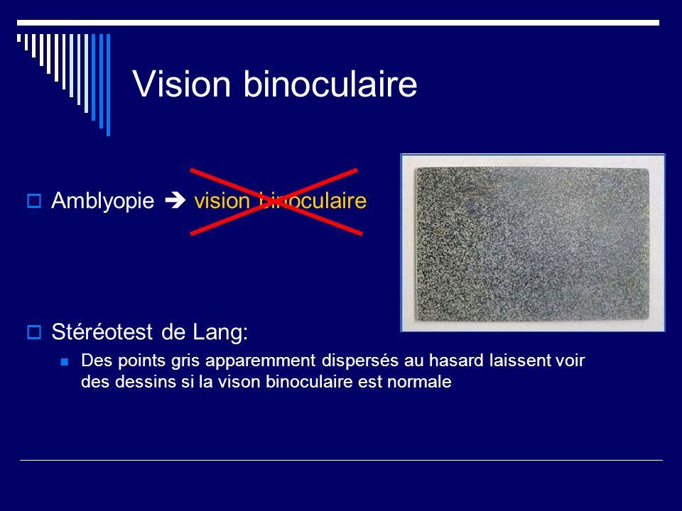 Vision binoculaire Amblyopie  vision binoculaire Stéréotest de Lang: