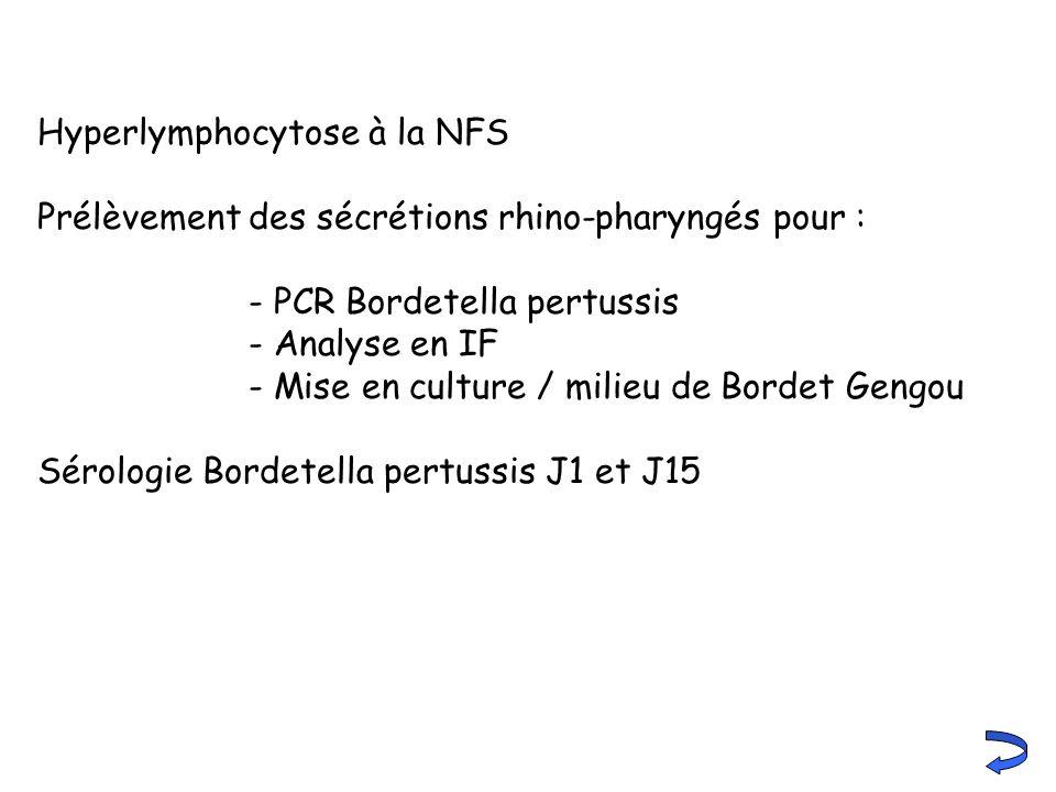 Hyperlymphocytose à la NFS