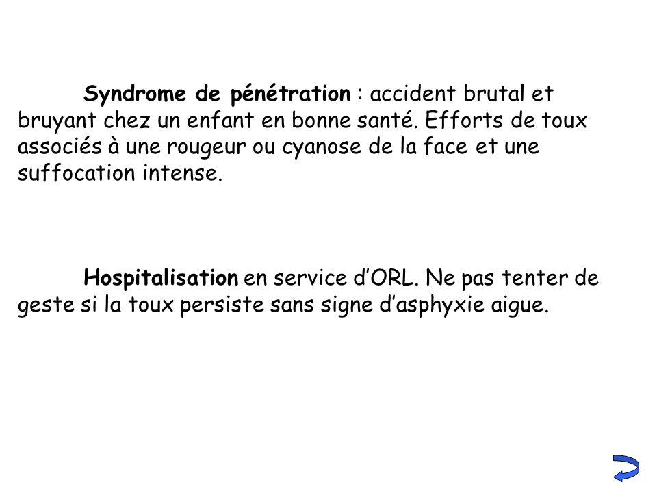 Syndrome de pénétration : accident brutal et bruyant chez un enfant en bonne santé. Efforts de toux associés à une rougeur ou cyanose de la face et une suffocation intense.