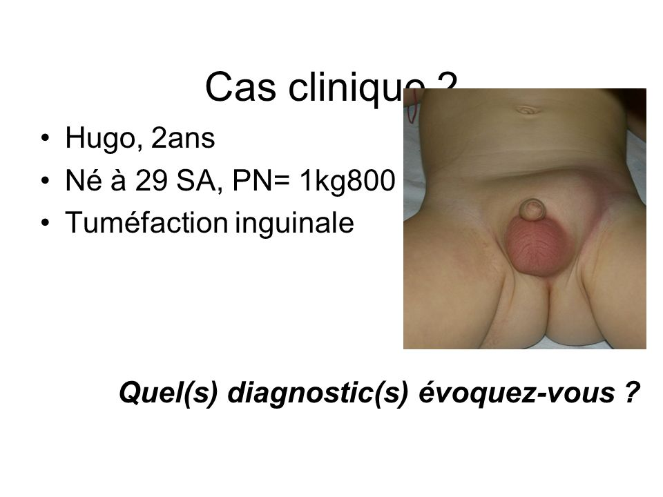Cas clinique 2 Hugo, 2ans Né à 29 SA, PN= 1kg800 Tuméfaction inguinale