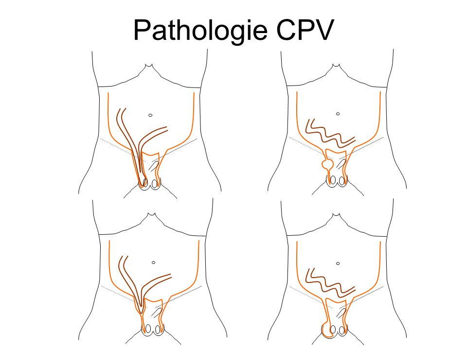 Pathologie CPV