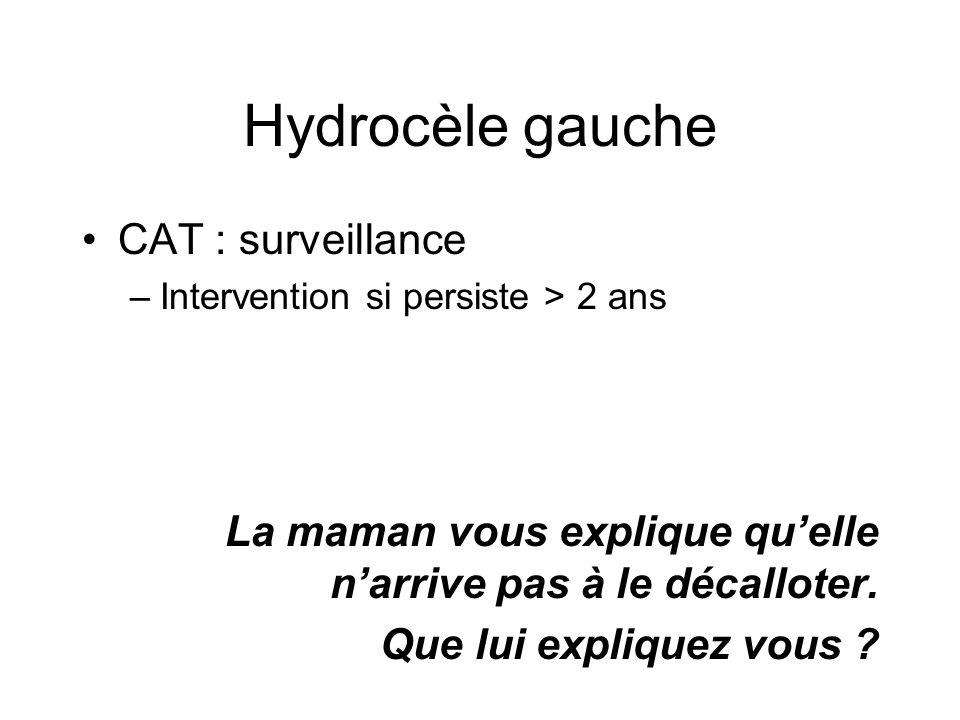 Hydrocèle gauche CAT : surveillance