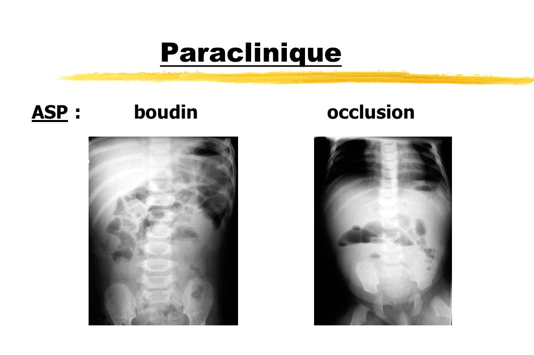 Paraclinique ASP : boudin occlusion