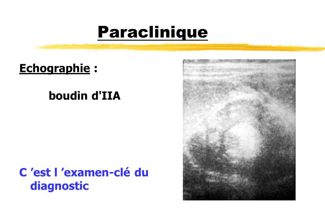 Paraclinique Echographie : boudin d IIA