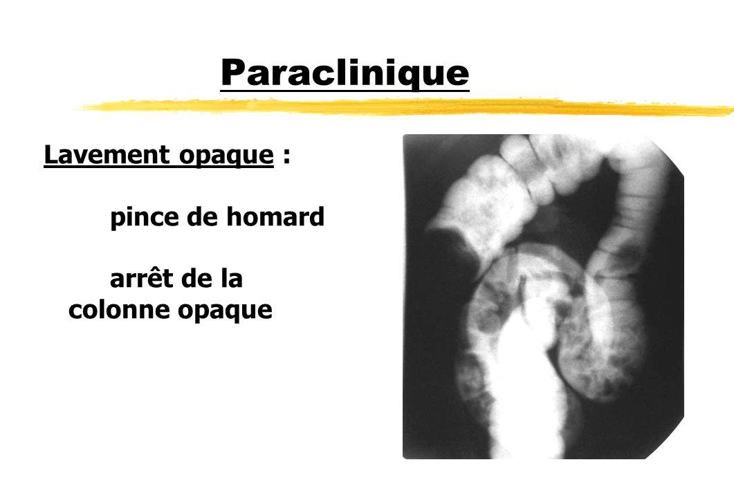 Paraclinique Lavement opaque : pince de homard arrêt de la colonne opaque
