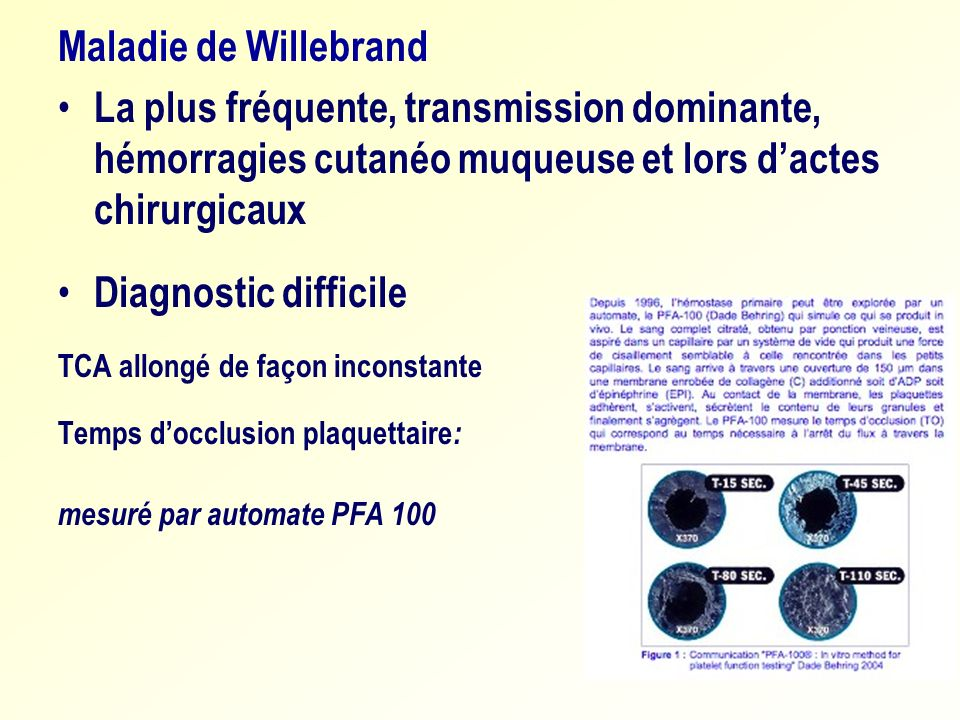 Maladie de WillebrandLa plus fréquente, transmission dominante, hémorragies cutanéo muqueuse et lors d'actes chirurgicaux.