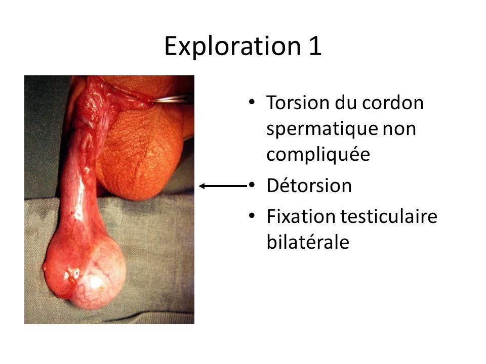 Exploration 1 Torsion du cordon spermatique non compliquée Détorsion