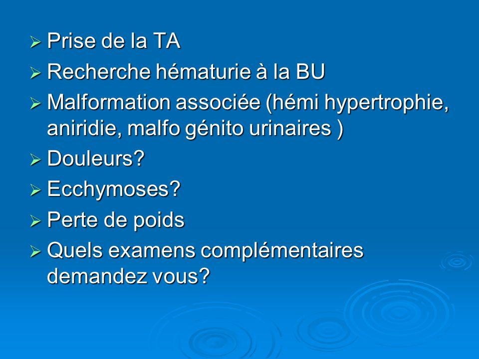 Prise de la TA Recherche hématurie à la BU. Malformation associée (hémi hypertrophie, aniridie, malfo génito urinaires )