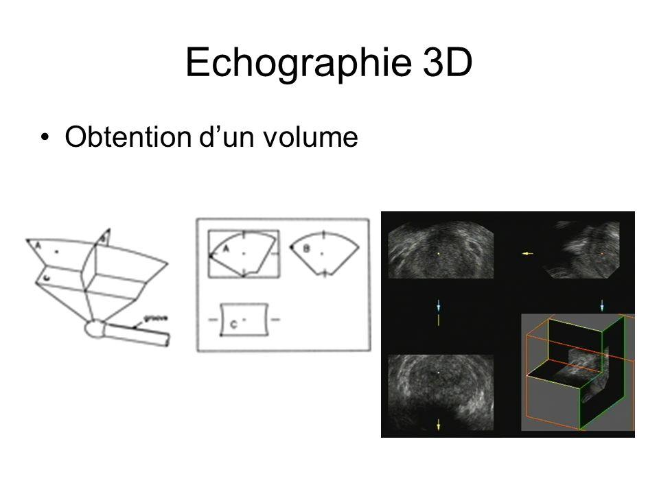 Echographie 3D Obtention d'un volume