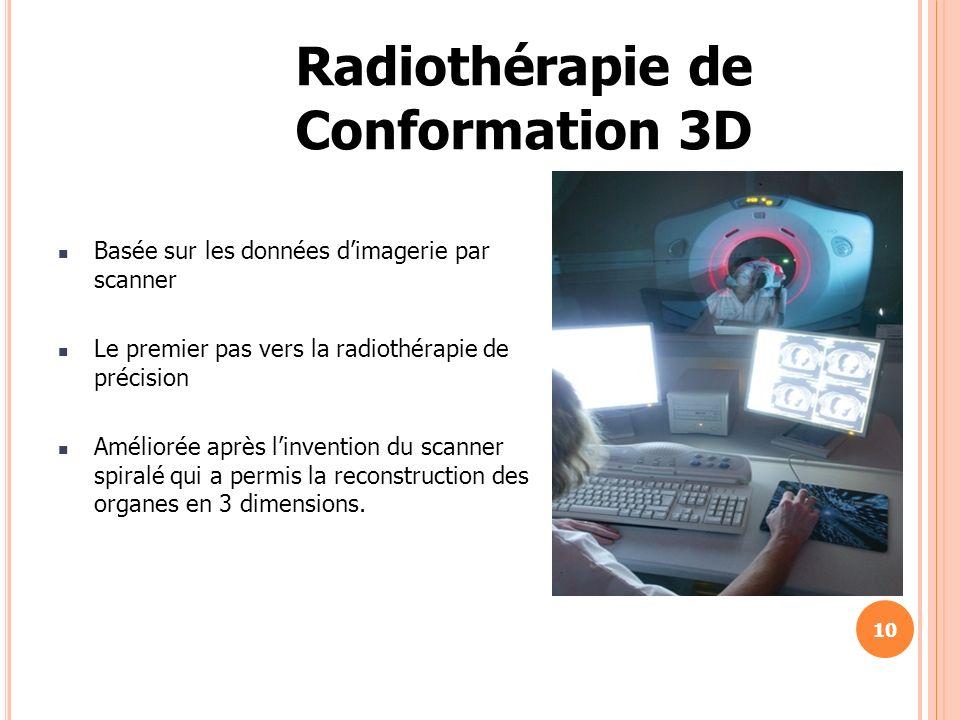 Radiothérapie de Conformation 3D