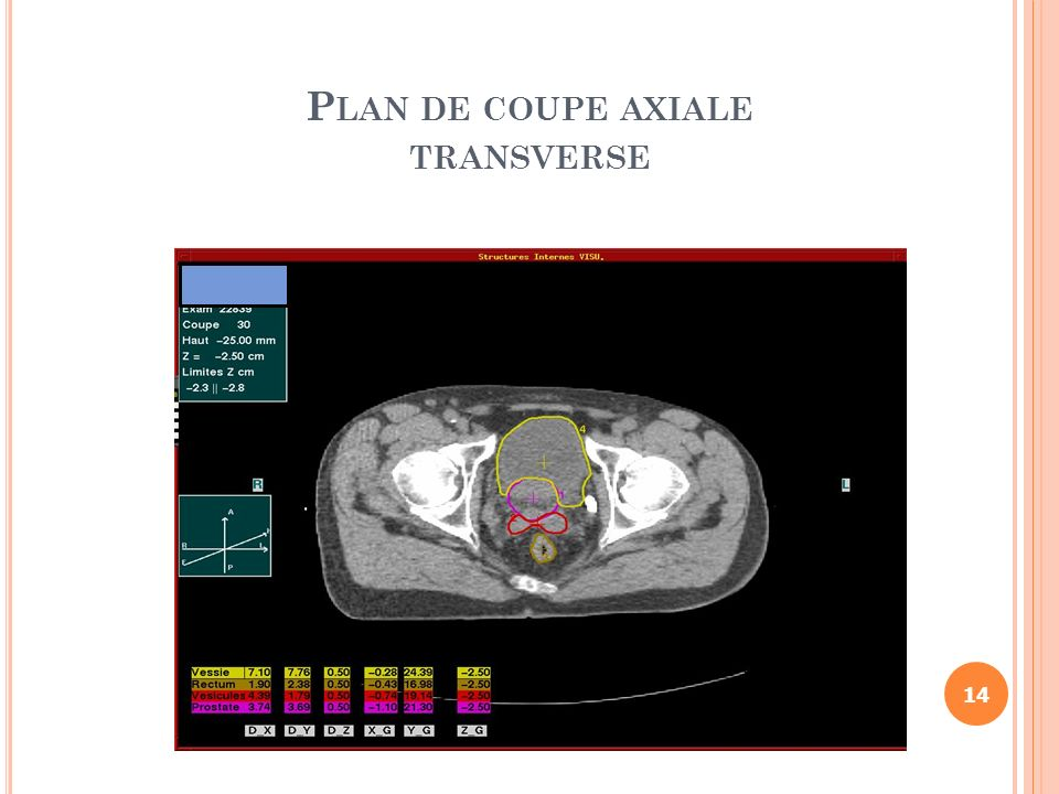 Plan de coupe axiale transverse