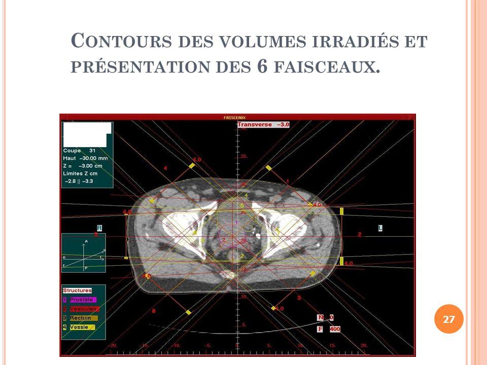 Contours des volumes irradiés et présentation des 6 faisceaux.