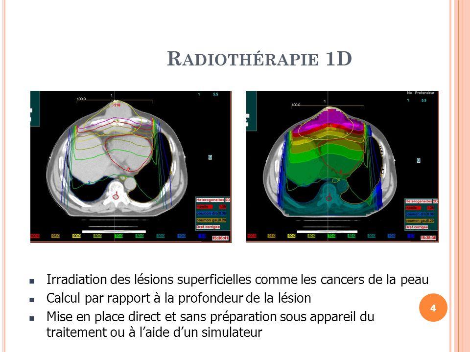 Radiothérapie 1DIrradiation des lésions superficielles comme les cancers de la peau. Calcul par rapport à la profondeur de la lésion.