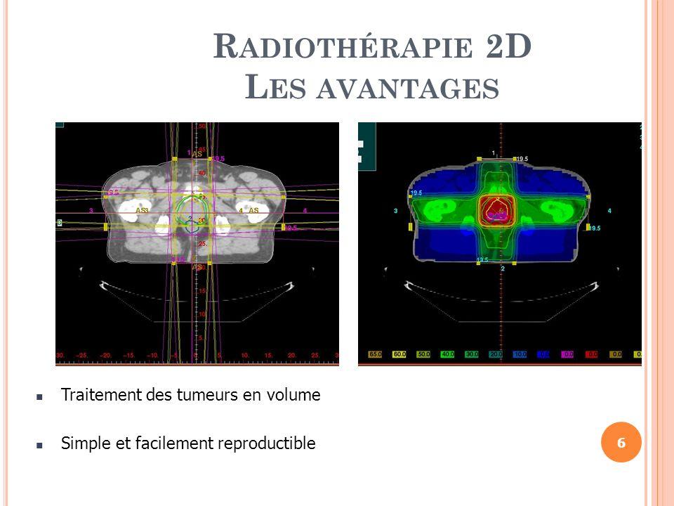Radiothérapie 2D Les avantages