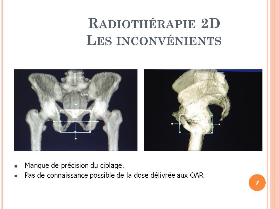 Radiothérapie 2D Les inconvénients