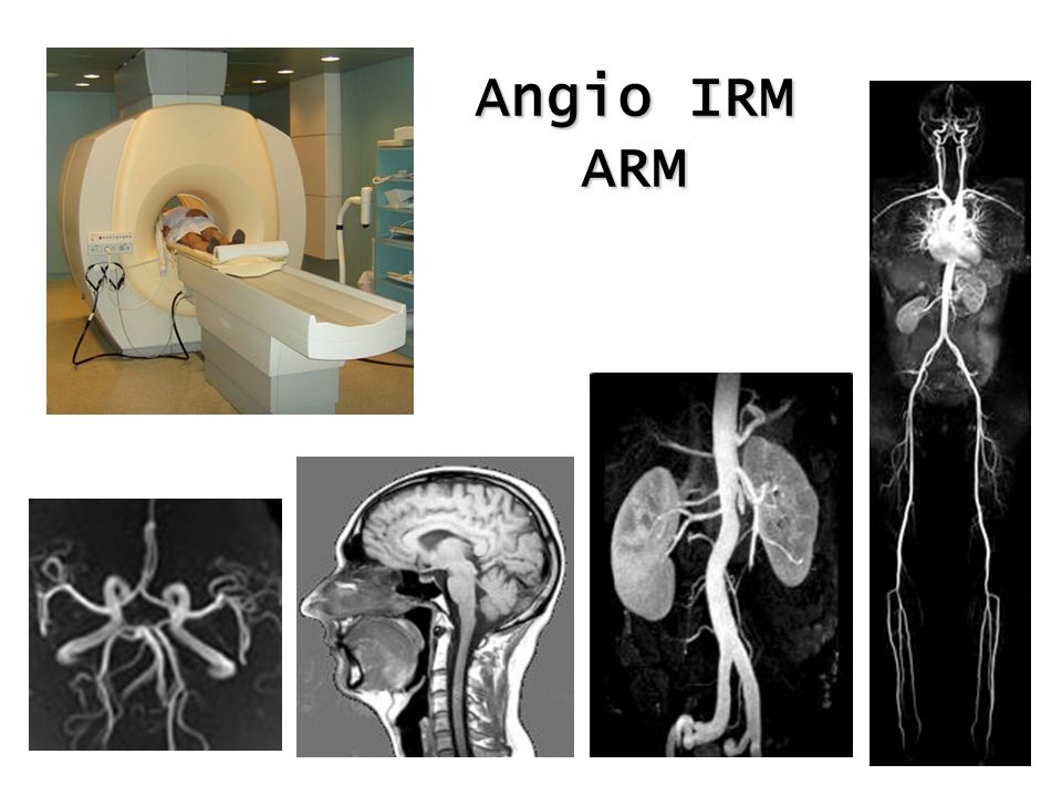 Angio IRM ARM