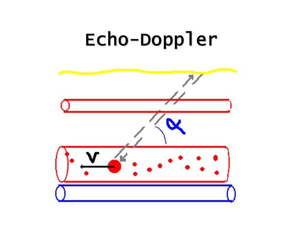 Echo-Doppler