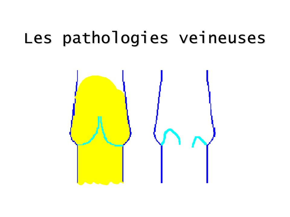 Les pathologies veineuses