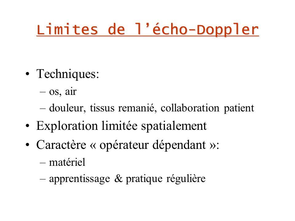 Limites de l'écho-Doppler